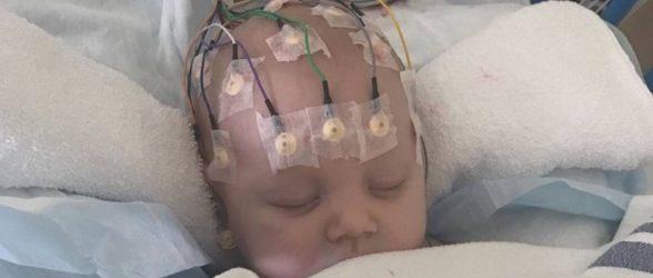سکته مغزی نوزاد بریتیش کلمبیایی مبتلا به مننژیت که با تشخیص«سرماخوردگی» از بیمارستان مرخص شده بود